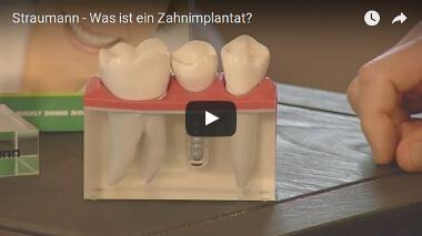 Implantat oder Brücke Straumann Video