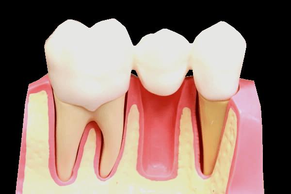 Zahn-Brücke lösung