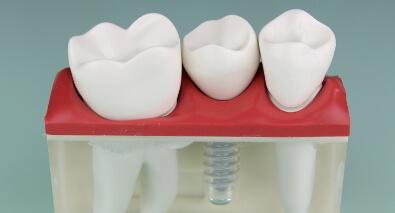Zahnzusatzversicherung für Zahnersatz und Zahnbehandlung